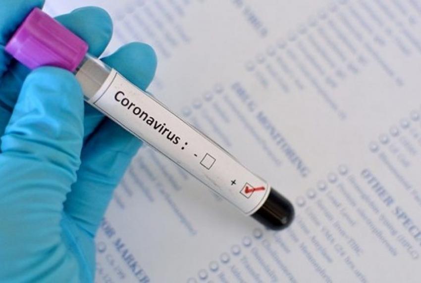 Один положительный: в Абхазии зафиксирован первый заболевший коронавирусом